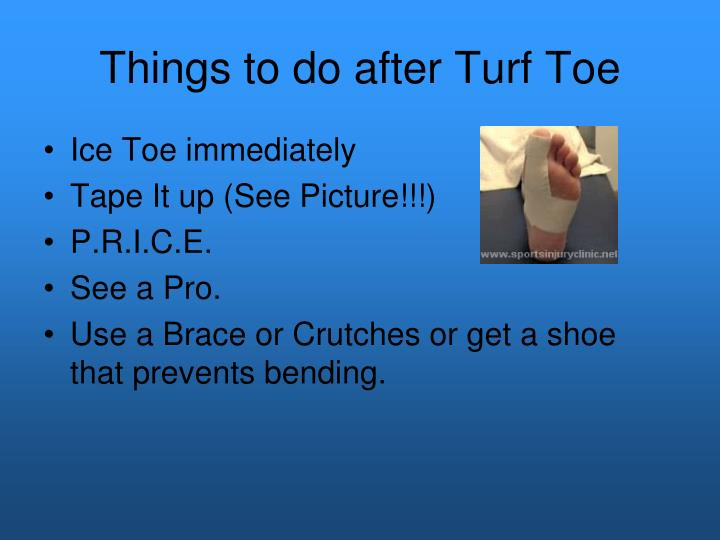 Things to do after Turf Toe