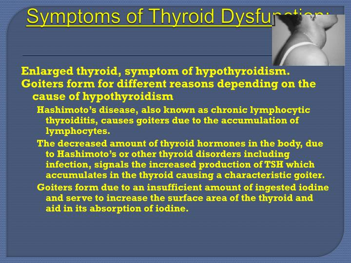 what causes a goiter on your thyroid