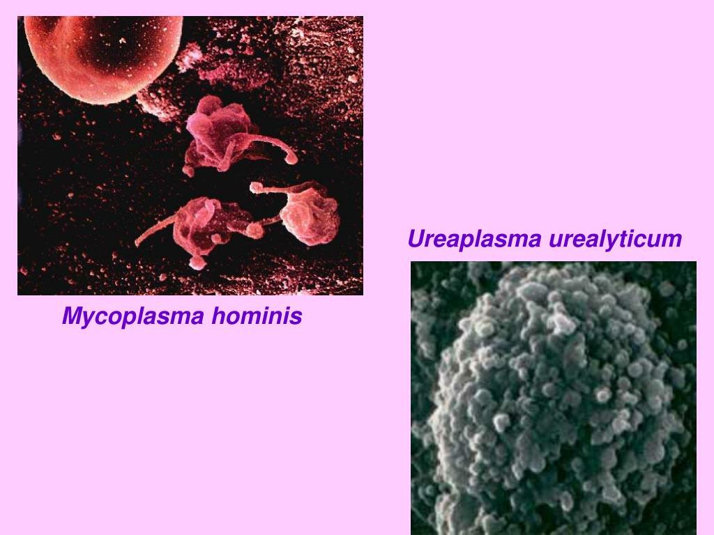 Микоплазмы хоминис и простатит простатит зуд уретры