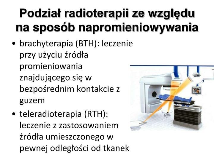 Podzia radioterapii ze wzgl du na spos b napromieniowywania