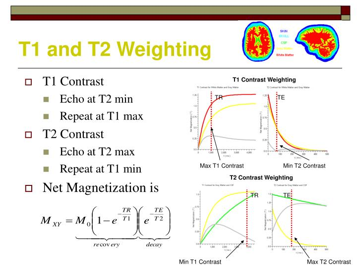T1 and T2 Weighting