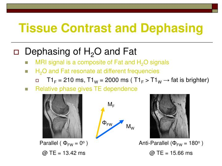 Tissue Contrast and Dephasing