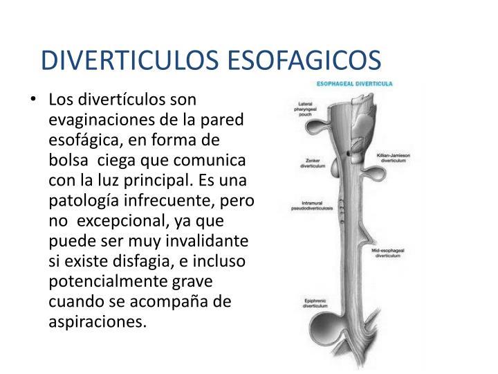DIVERTICULOS ESOFAGICOS