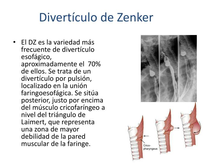 Divertículo de Zenker