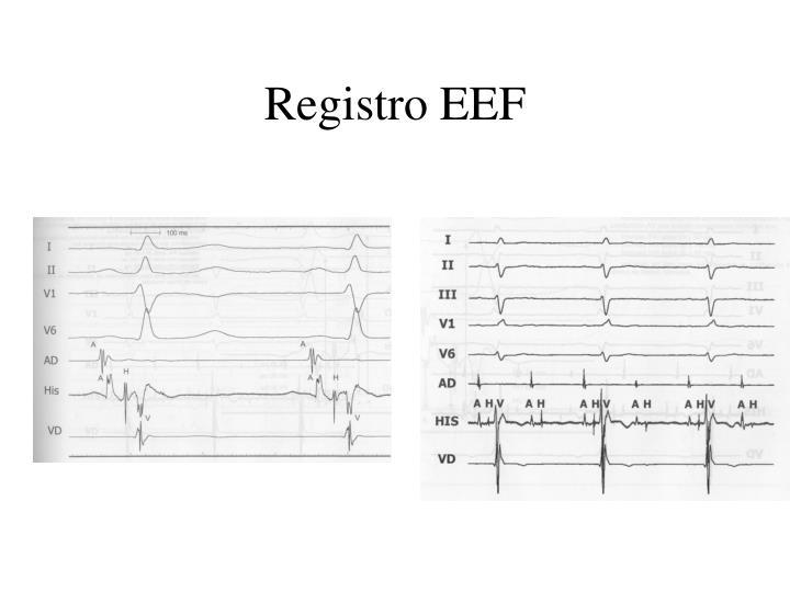 Registro EEF