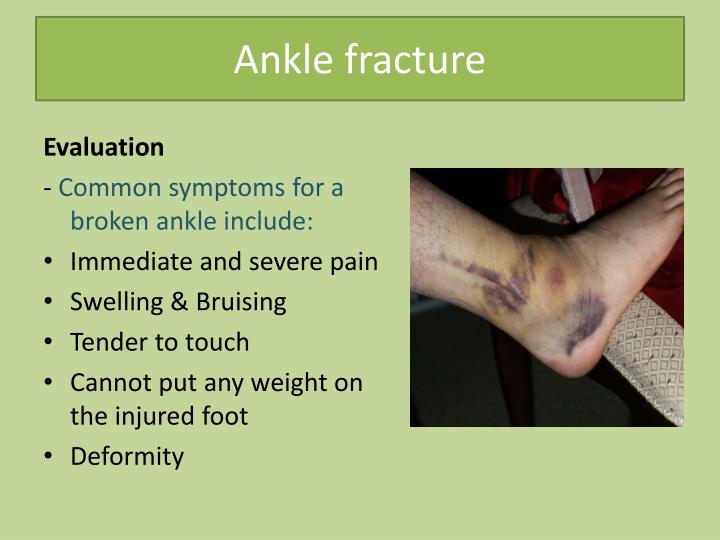 Ppt Common Lower Limb Fracture Powerpoint Presentation