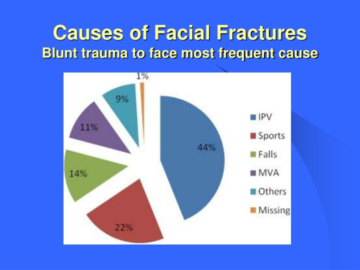 Causes of Facial Fractures