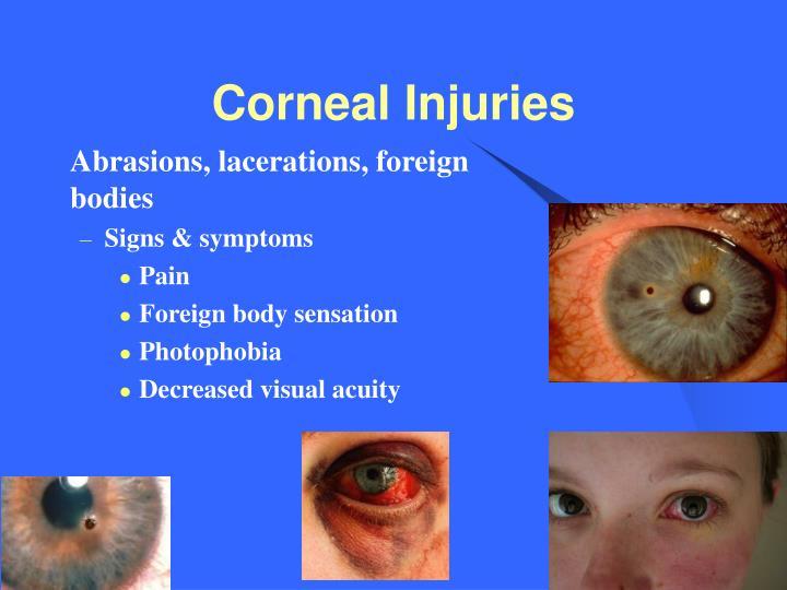 Corneal Injuries