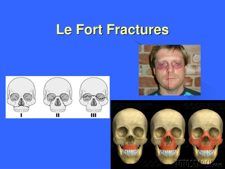 Le Fort Fractures