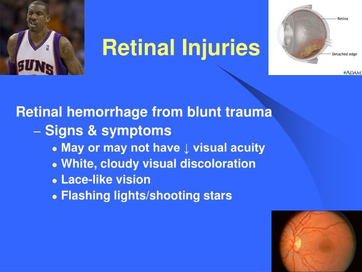 Retinal Injuries