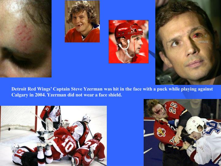 Detroit Red Wings' Captain Steve Yzerman was hit in the face with a puck while playing against Calgary in 2004. Yzerman did not wear a face shield.