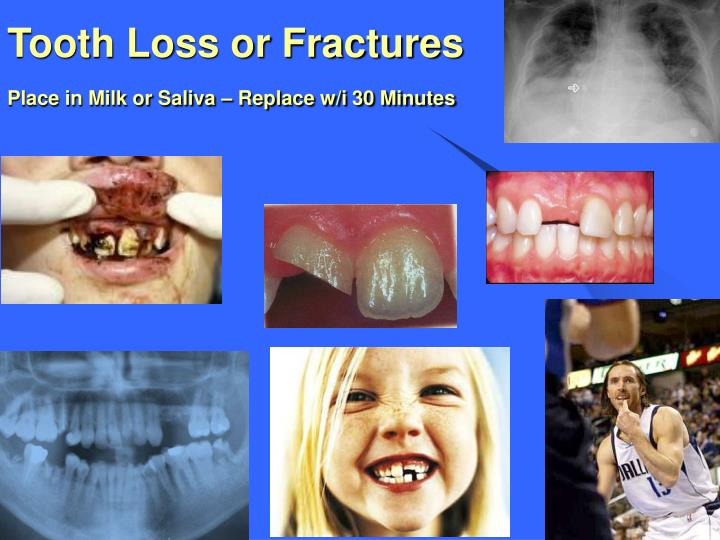 Tooth Loss or Fractures