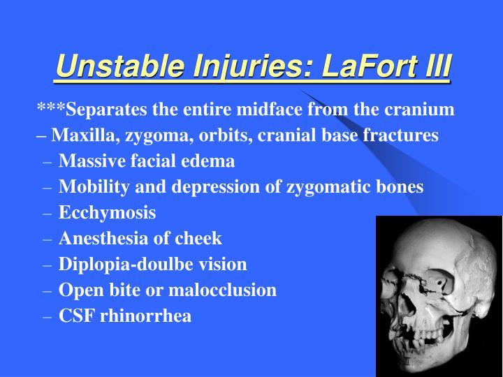 Unstable Injuries: LaFort III