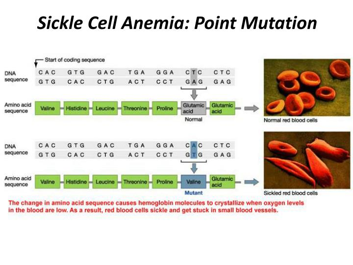 Sickle Cell Anemia: Point Mutation