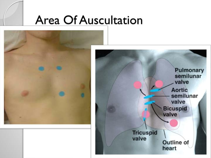 Area of auscultation