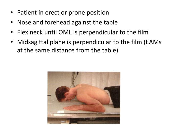 Patient in erect or prone position
