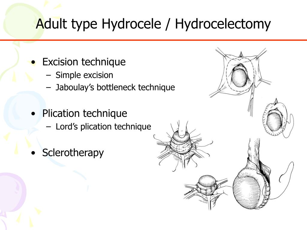 PPT - Surgical Treatment Of Hydrocele & Hernia PowerPoint ...