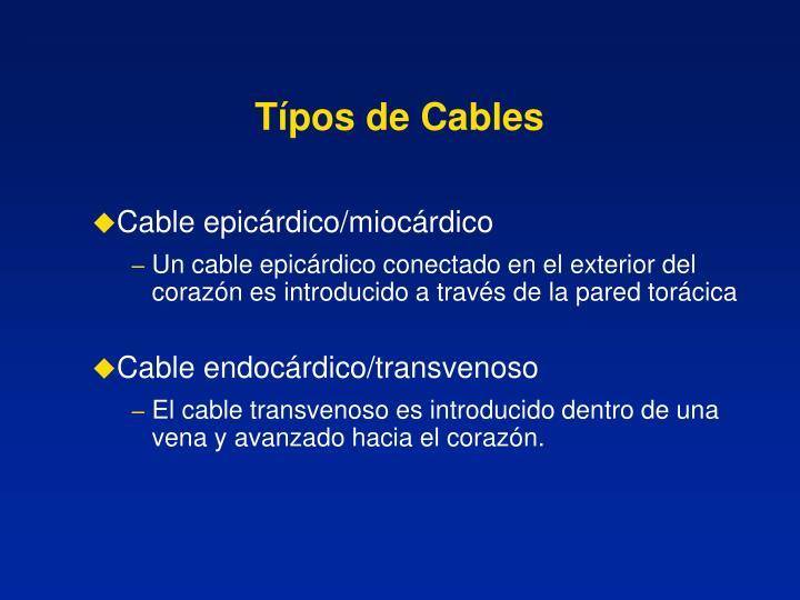 Típos de Cables