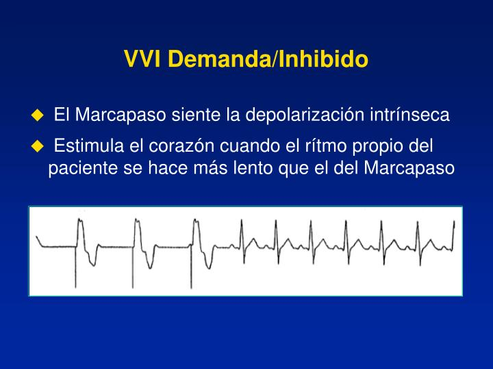 VVI Demanda/Inhibido