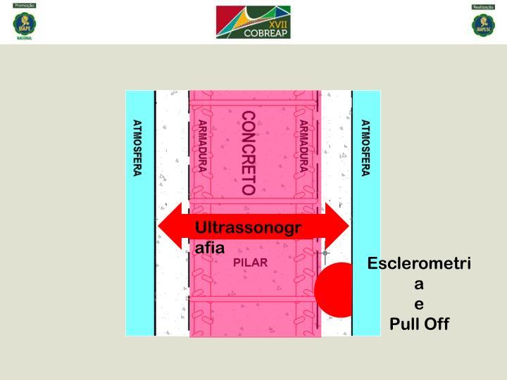 Ultrassonografia