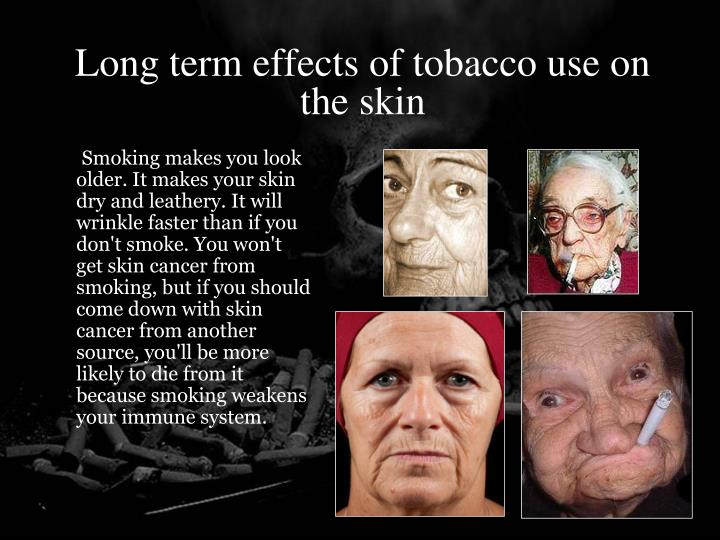 Long term effects of tobacco use on the skin