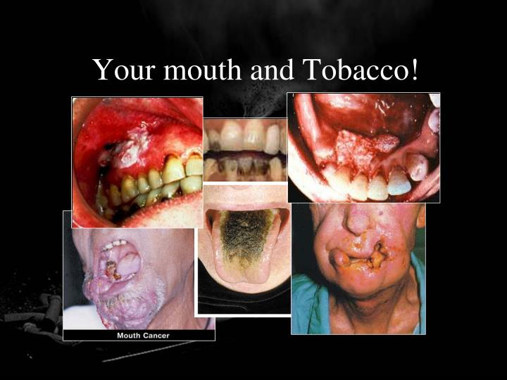 Your mouth and Tobacco!
