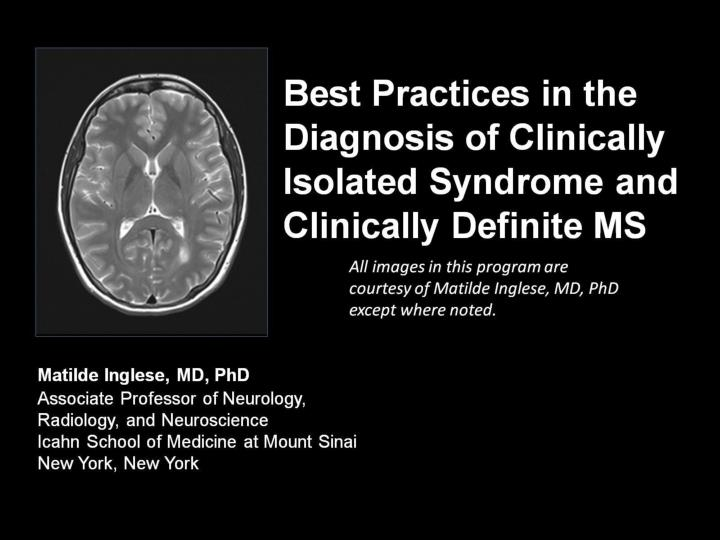 best practices in the diagnosis of clinically isolated syndrome and clinically definite ms n.