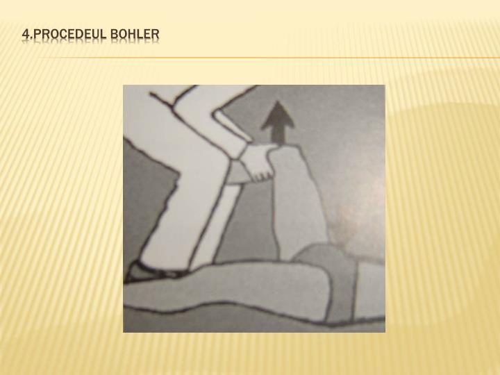 4.Procedeul Bohler