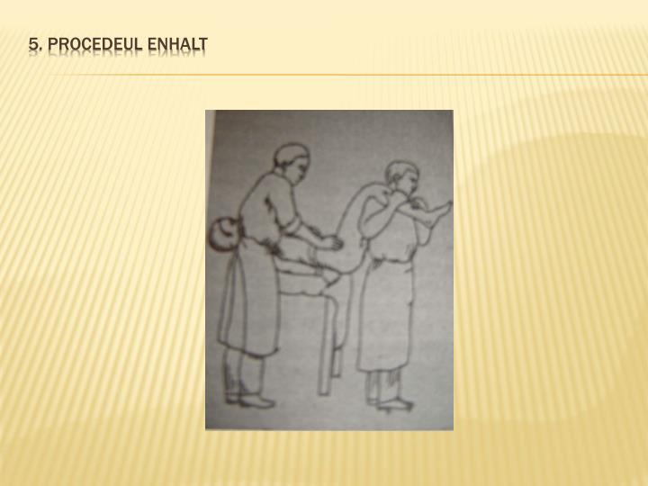 5. Procedeul Enhalt