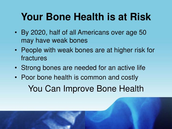 Your bone health is at risk
