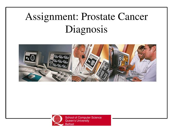 assignment prostate cancer diagnosis n.