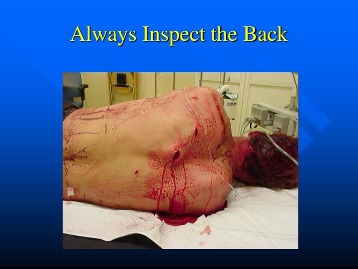 Always Inspect the Back
