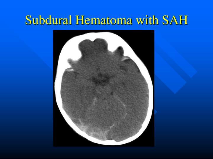 Subdural Hematoma with SAH