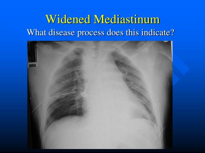 Widened Mediastinum