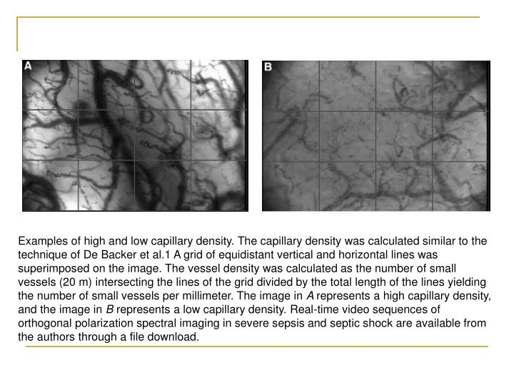 Examples of high and low capillary density. The capillary density was calculated similar to the technique of De Backer et al.1 A grid of equidistant vertical and horizontal lines was superimposed on the image. The vessel density was calculated as the number of small