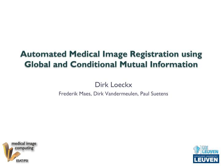 automated medical image registration using global and conditional mutual information n.