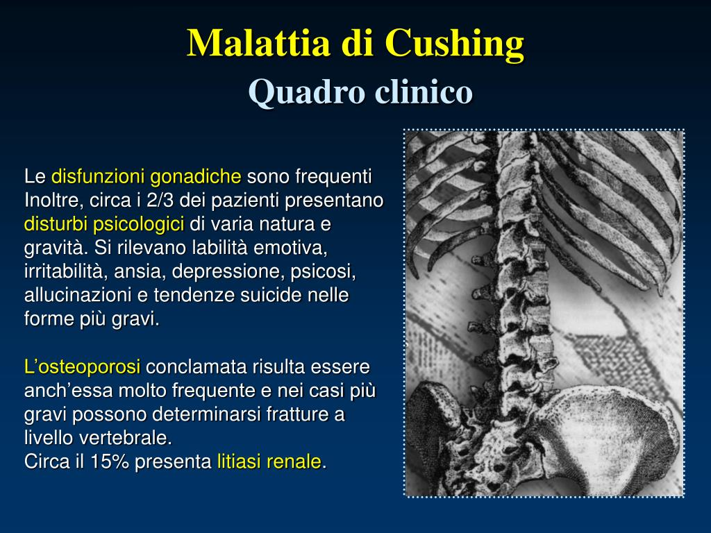 PPT - Ipercortisolismo o Sindrome di Cushing PowerPoint..