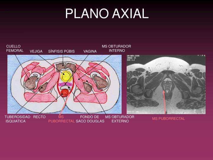 PPT - ANATOMÍA SUELO PÉLVICO PowerPoint Presentation - ID:5795633