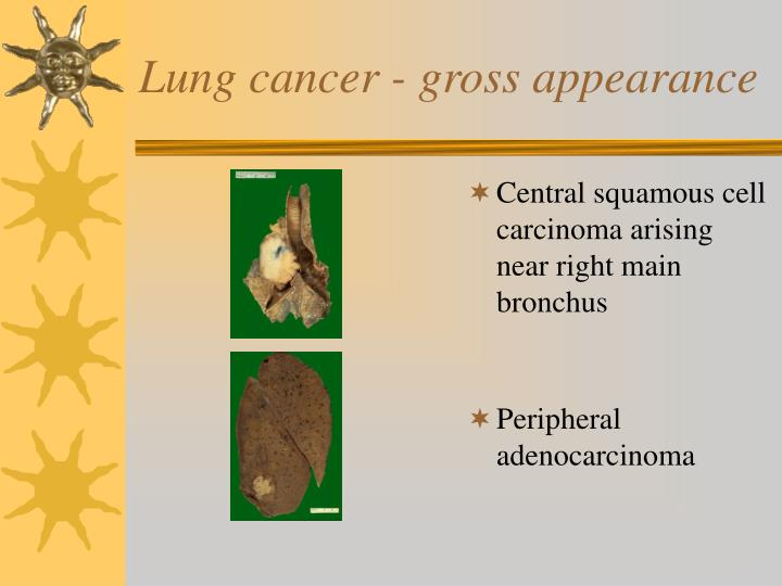 Lung cancer - gross appearance