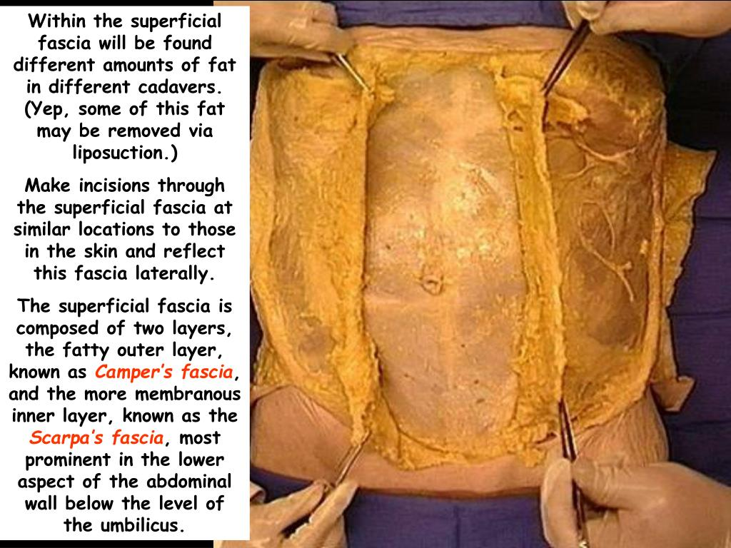 ppt dissection of the anterior abdominal wall powerpoint presentation id 5802654 anterior abdominal wall powerpoint