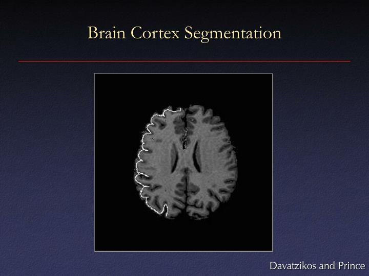 Brain Cortex Segmentation