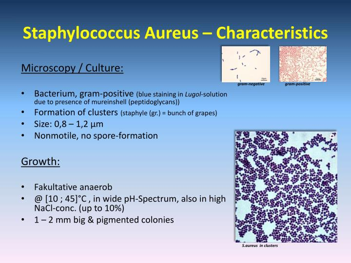 a review of staphylococcus aureus biology essay Anti-staphylococcus aureus antibody conjugated to hrp validated for wb, elisa and tested in s aur immunogen corresponding to tissue, cells or virus.