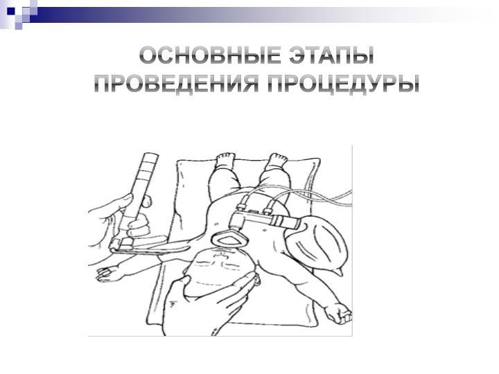 Основные этапы проведения процедуры