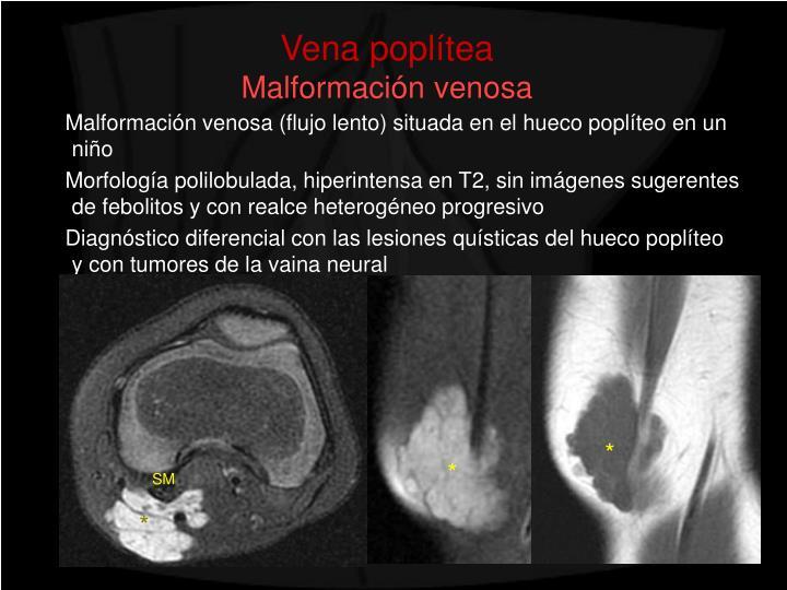 PPT - Revisión ilustrada de la patología del hueco poplíteo ...