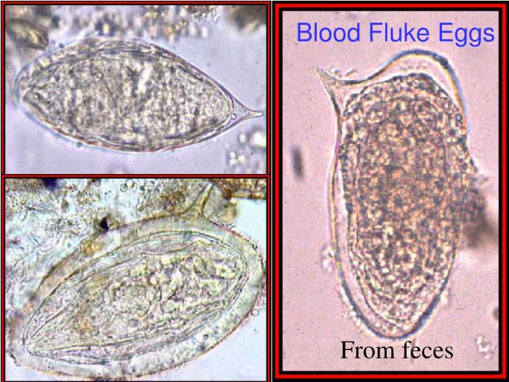 Blood Fluke Eggs