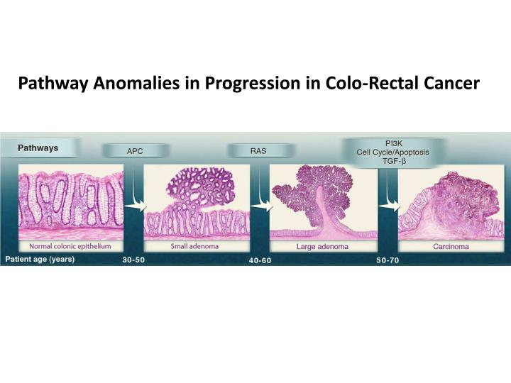 Pathway Anomalies in Progression in Colo-Rectal Cancer