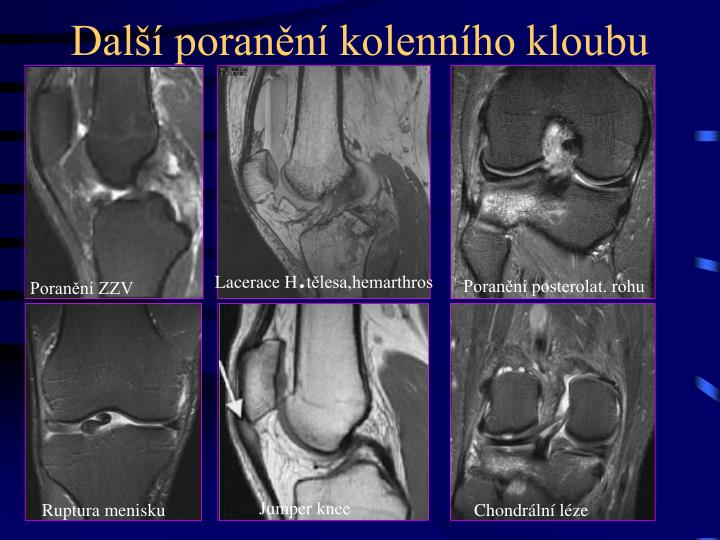 Další poranění kolenního kloubu