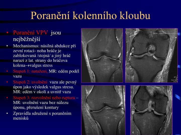 Poranění kolenního kloubu