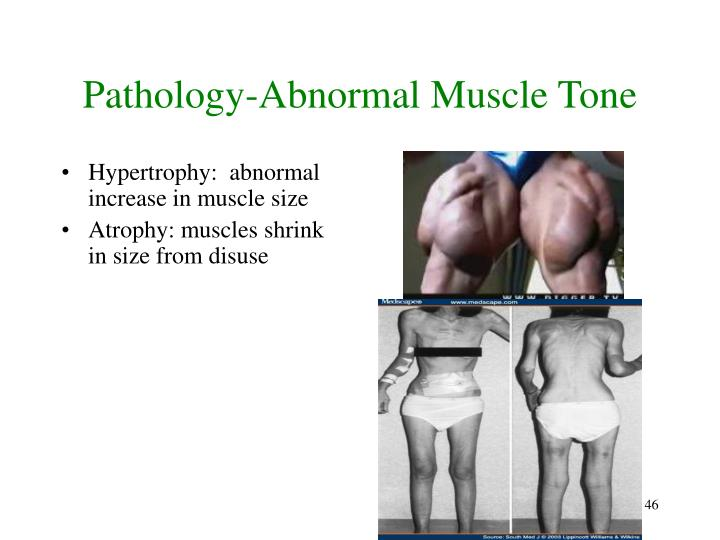 Pathology-Abnormal Muscle Tone
