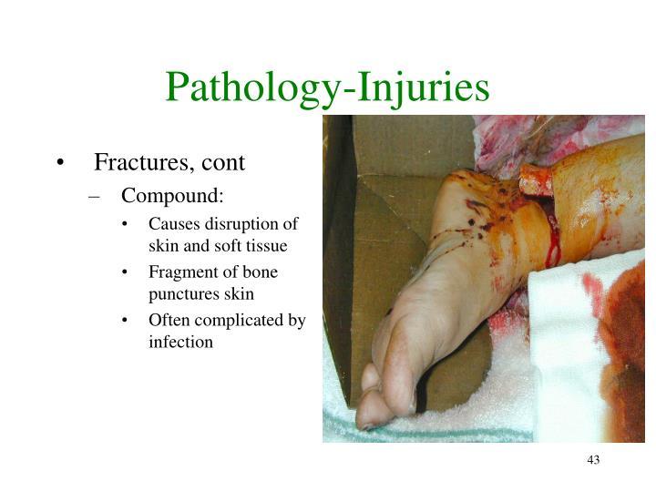 Pathology-Injuries